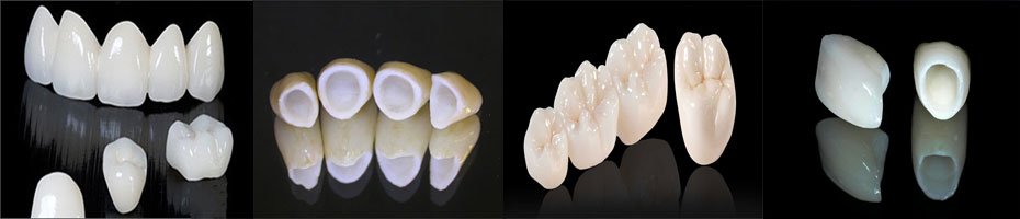 Bọc Răng Sứ Thẩm Mỹ Ở Đâu Tốt Nhất? –Răng Sứ Thẩm Mỹ Ở Quận 2